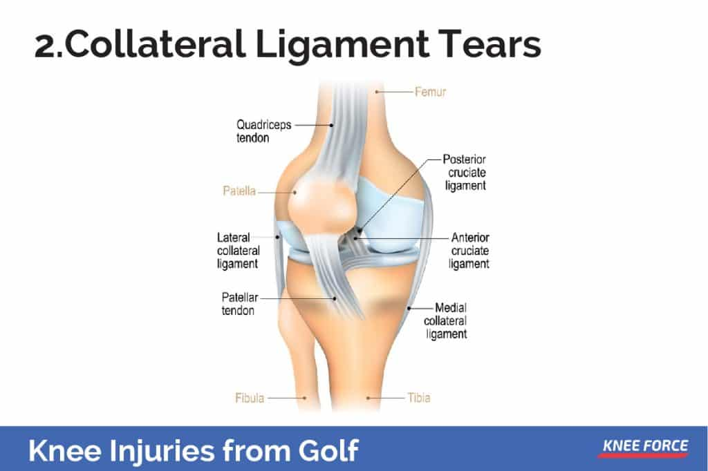 The medial collateral ligament is on the inner side of the knee, while the lateral collateral ligament is on the outer side.