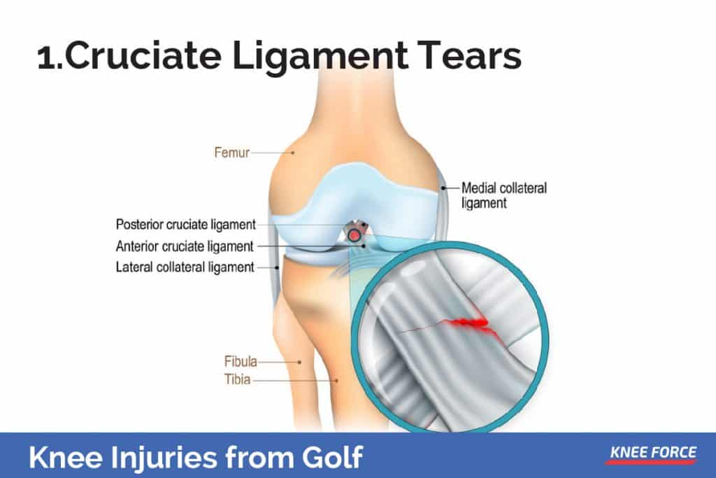 These are two short, strong ligaments located at the center of the knee joint.