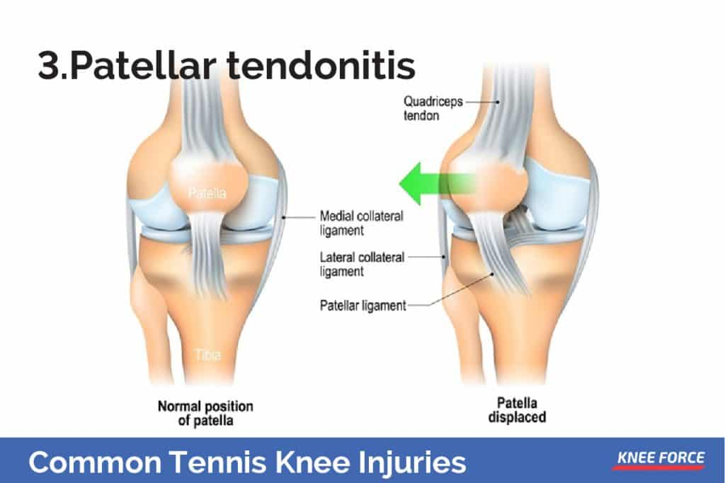 It affects the patellar tendon, attaching the kneecap to the tibia